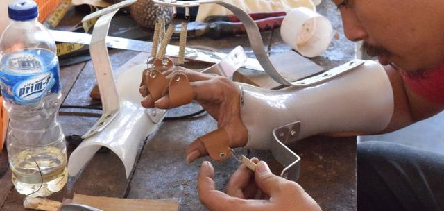 hand prothese crop